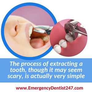 24-Hour Emergency Dentists CHICAGO