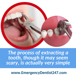 247 emergency dentists houston