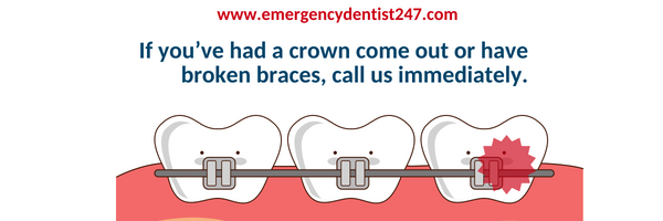 emergency dentist braces