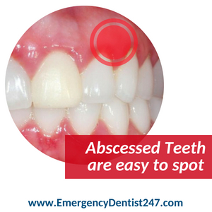 emergency dentist manhattan 247