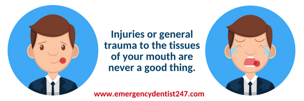 mouth injuries emergency dentist