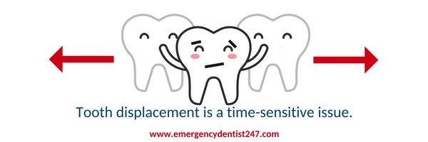 tooth displacement emergency
