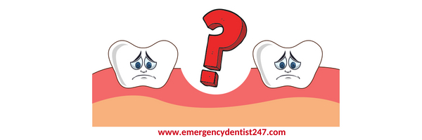 tooth loss emergency dentist