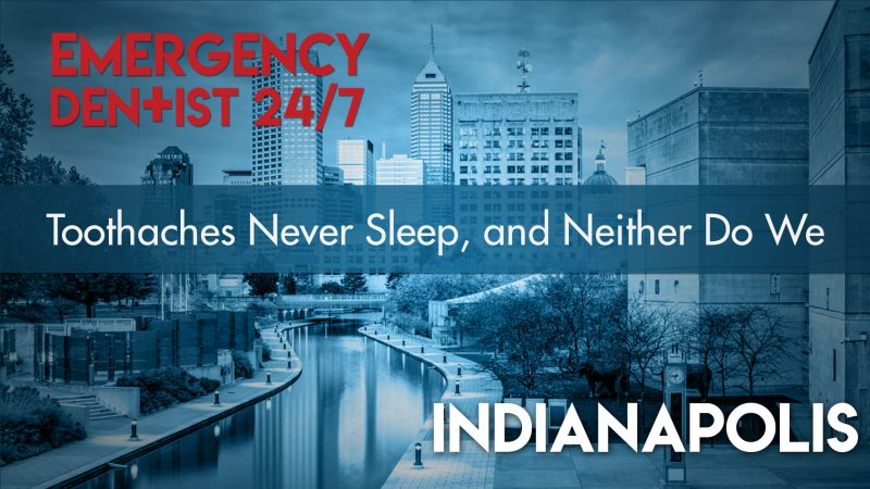 Emergency Dentist Indianapolis 24/7 Cover