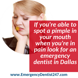 abscess tooth - emergency dentist 247 dallas
