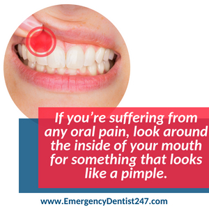 abscessed teeth and oral infections dental emergency 247 spokane valley