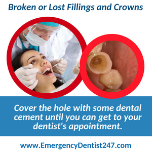 broken fillings and crowns - emergency dentist 247 san jose