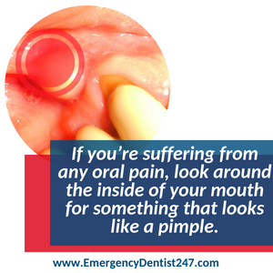 dealing with an oral infection - emergency dentist 247 san jose