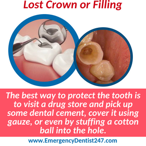 emergency dentist 247 bronx nyc loss of a crown or filling