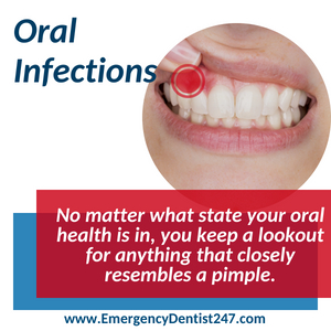 emergency dentist 247 bronx nyc oral infections
