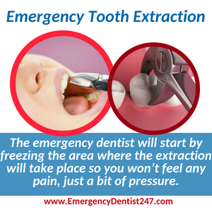 emergency dentist 247 chelmsford ma emergency tooth extraction