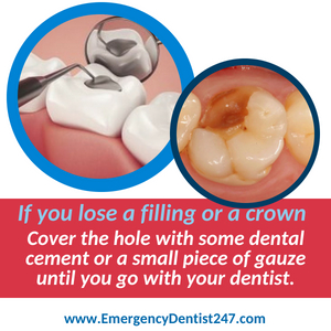 emergency dentist 247 chelmsford ma losing a filling or a crown