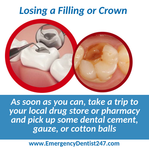 emergency dentist 247 indianapolis losing a filling or a crown