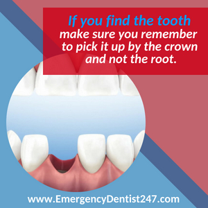 emergency dentist 247 indianapolis losing a tooth