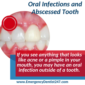 emergency dentist 247 indianapolis oral infections and abscessed tooth