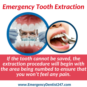 emergency dentist 247 indianapolis tooth extraction