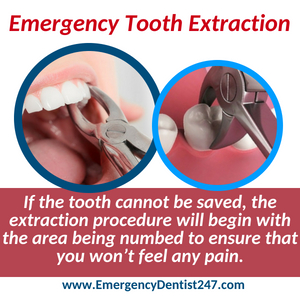 emergency dentist 247 leominster emergency tooth extraction