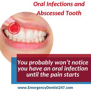 emergency dentist 247 leominster oral infections and abscessed tooth