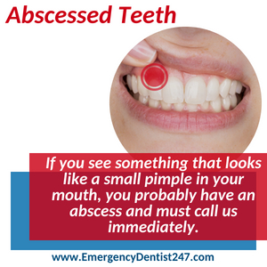 emergency dentist 247 phoenix az - abscessed teeth