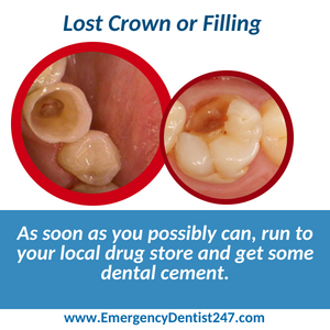 emergency dentist 247 phoenix az - lost crown or filling