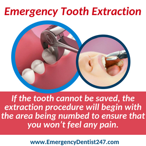 emergency dentist 247 phoenix az - tooth extraction
