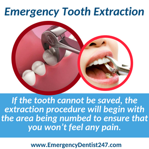 emergency dentist 247 san antonio tx - emergency tooth extraction
