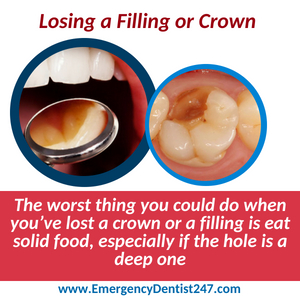 emergency dentist 247 san antonio tx - lost crown or filling