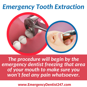 emergency dentist 247 san francisco - emergency tooth extraction