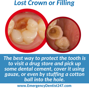emergency dentist 247 san francisco - lost crown or filling