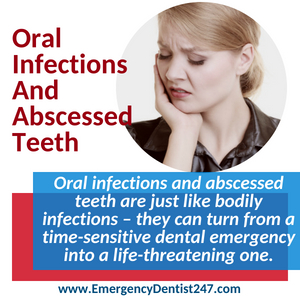 emergency dentist 247 san francisco - oral infections and abscessed teeth
