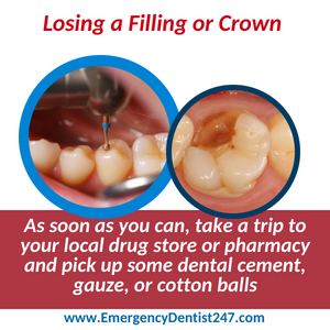 emergency dentist jacksonville 247 losing filling or a crown