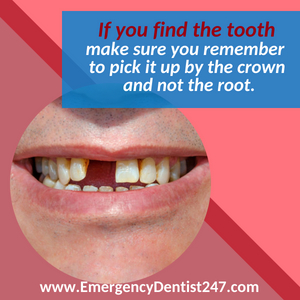 emergency dentist jacksonville 247 missing tooth