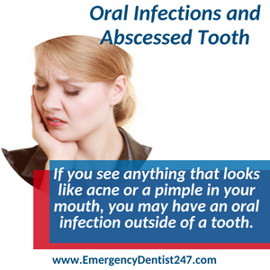 emergency dentist jacksonville 247 oral infection and abscessed tooth