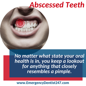emergency dentist san diego 247 abscessed teeth and oral infections