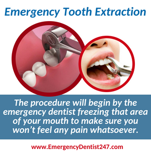 emergency dentist san diego 247 emergency tooth extraction