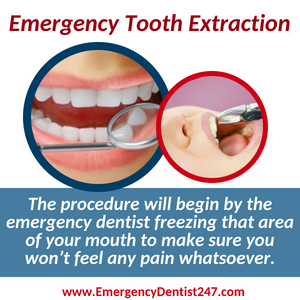emergency tooth extraction bronx nyc