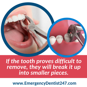 emergency tooth extraction in maryland 247