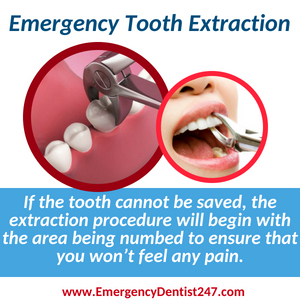 emergency tooth extraction jacksonville 247