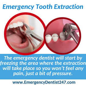 emergency tooth extraction spokane valley