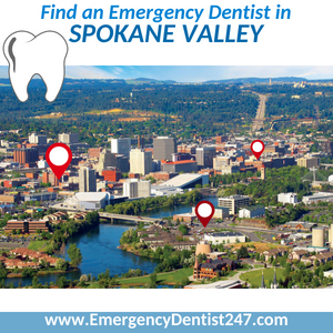 find an emergency dentist in spokane valley