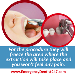 having an emergency tooth extraction done in austin tx