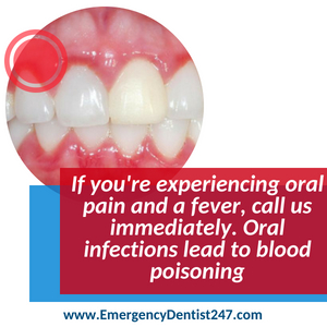 infections of the mouth - emergency dental 247 austin
