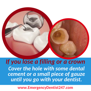 losing a crown or a filling lincroft nj emergency dentist 247