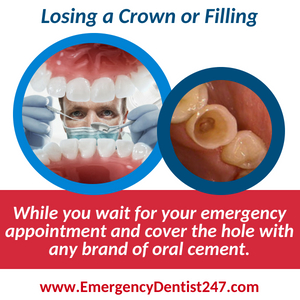 losing a crown or filling - emergency dental 247 queens nyc