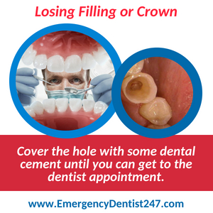 losing a filling or a crown emergency dentist 247 austin