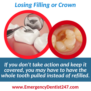 losing a filling or a crown - emergency dentist 247 maryland