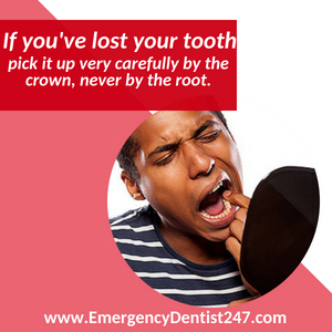 losing a tooth - emergency dental 247 san jose ca