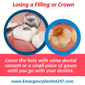 losing filling emergency dentist 247 spokane valley