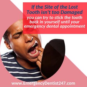 losing your teeth emergency dental 247 maryland