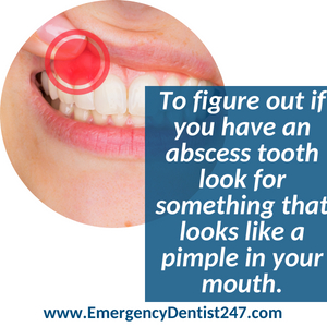 oral infections abscesses 247 emergency dentist queens nyc